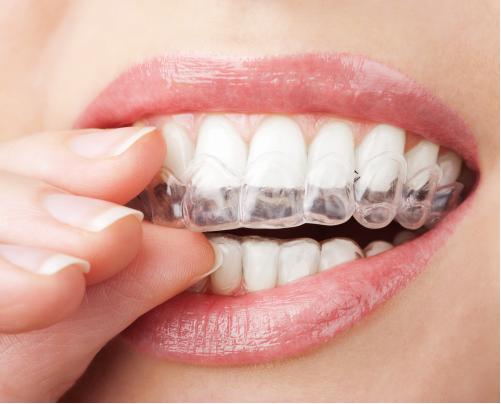 Tratament estetica dentara cabinet stomatologic sector 2 No Pain
