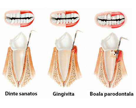 Parodontologie cabinet sector 2 No Pain