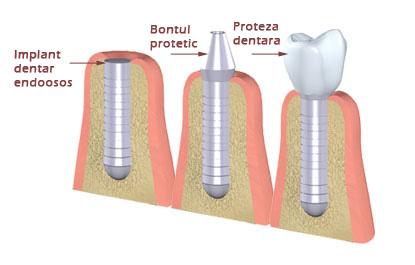 Implant dentar cabinet stomatologic sector 2 No Pain