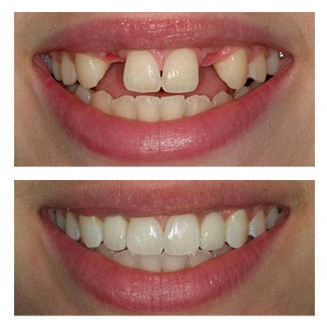 Implant dentar stomatologie sector 2