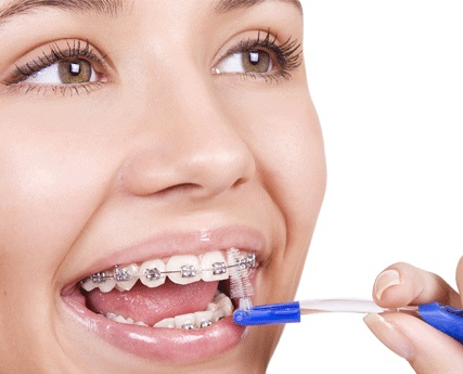Tratament ortodontie cabinet stomatologic sector 2