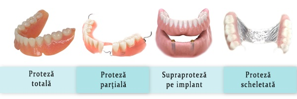 Protetica dentara cabinet stomatologic sector 2